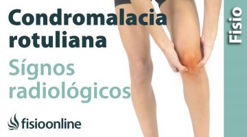 Condromalacia rotuliana. Signos radiológicos.