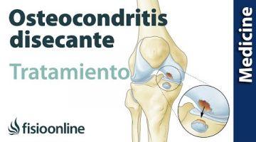 Pasos a seguir en el tratamiento si tienes Osteocondritis disecante