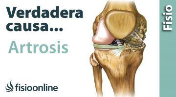 La verdadera causa de la artrosis. (Más allá de lo que te han contado)