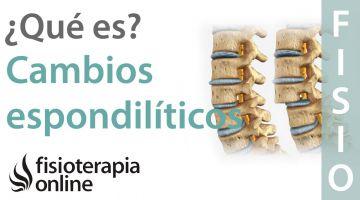 Cambios espondilíticos o espondiloartrósicos. ¿Qué quiere decir?