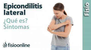 2 Epicondilitis lateral o codo de tenista. Qué es, causas, síntomas y tratamiento.