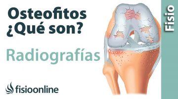 Osteofitos - Qué son y cómo se ven en radiografías y TAC