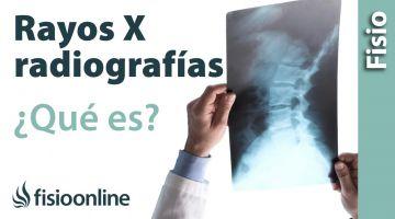 RX o radiografía, que es y cómo funciona
