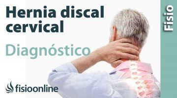 Cómo saber si tienes una hernia discal cervical