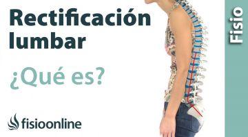 33# Rectificación o inversión de la curvatura lumbar. Qué es, causas y tratamiento.