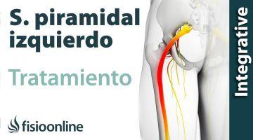 Tratamiento del Sindrome Piramidal izquierdo