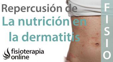 Importancia de la nutrición en el desarrollo en la dermatitis atópica