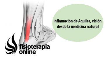 Inflamación o tendinitis de Aquiles, visión desde la medicina natural