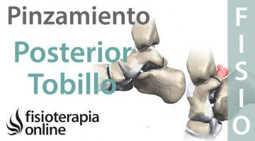 Os Trigonum o pinzamiento posterior del tobillo - Qué es, cómo se diagnostica y tratamiento