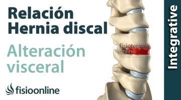 ¿Cómo se produce una hernia discal por una disfunción o alteración visceral?