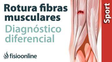 Cómo saber si tienes una rotura de fibras o una contractura muscular