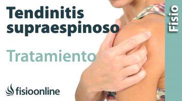 Tratamiento para la Tendinopatía del supraespinoso del hombro.