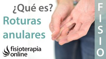 Roturas anulares o del anillo fibroso discal. ¿Qué es?