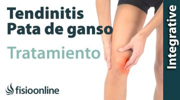 Tendinitis de pata de ganso. Tratamiento con ejercicios auto-masajes y estiramientos.