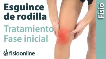 Esguince de ligamento lateral EXTERNO de rodilla. Tratamiento en su fase inicial.