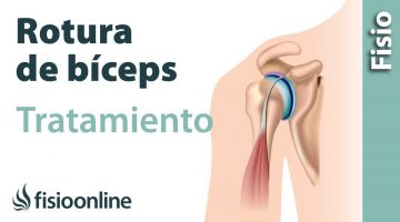 15 Rotura de biceps humeral. Qué es, causas, síntomas y tratamiento.