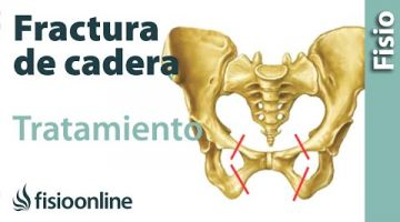 14.Fracturas de femur, cadera y pelvis. Fases de curación y tratamiento.