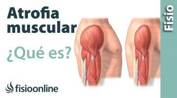 Atrofia muscular - Qué es y cómo sucede