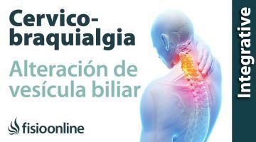 Cérvico-braquialgia Izquierda por vesícula biliar. Plantas medicinales y remedios naturales