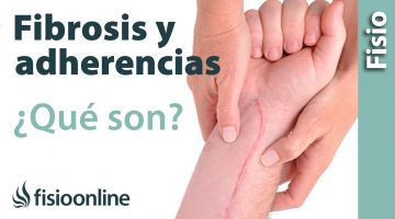 49# Fibrosis y adherencias en lesiones y heridas. Qué es, causas e importancia.