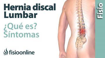 ¿Qué es una hernia discal lumbar y cuáles son sus síntomas y causas?