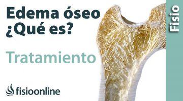 Edema óseo - Qué es, causas y tratamiento