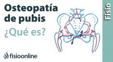 12# Pubalgia u Osteopatia de pubis. Qué es, causas, síntomas y tratamiento.