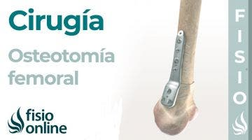 OSTEOTOMÍA FEMORAL: Técnica de la artrosis de rodilla sin prótesis