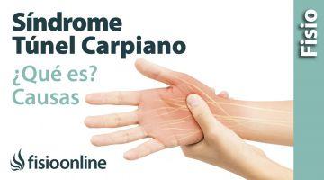 3# Síndrome del túnel carpiano. Qué es, causas, síntomas y tratamiento.