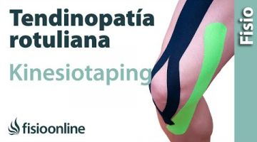15 Kinesiostaping en la tendinopatia rotuliana