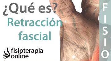 Retracción muscular o fascial - Qué es y cuales son sus causas