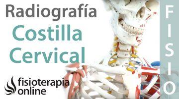 Costilla cervical - Qué es y cómo se diagnostica por radiografía