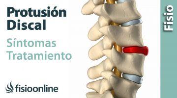52# Protrusión de disco o discal. Qué es, causas, síntomas y tratamiento.