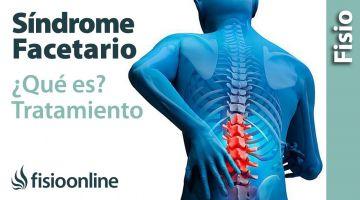 Qué es el síndrome facetario y su tratamiento