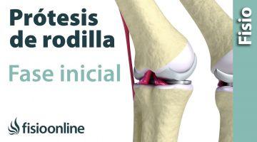 Rehabilitación de Prótesis de Rodilla - Primera Fase