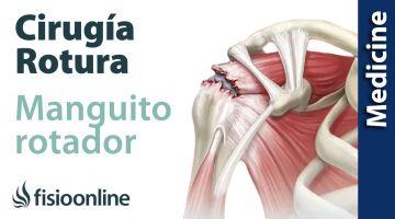 Patología del Manguito Rotador. Qué es, diagnóstico y tratamiento indicado.