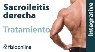 Tratamiento de la sacroileitis derecha