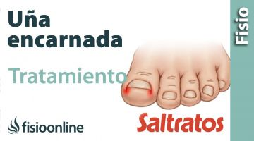 Uña Enacarnada o uña clavada. Qué es, causas, síntomas y tratamiento