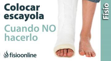 12.Por qué retirar las Escayolas e inmovilizaciones en esguinces y lesiones menores.
