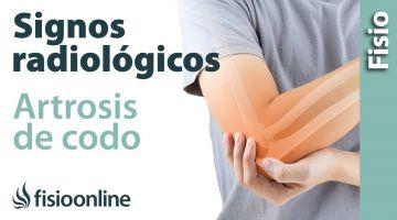 Artrosis de codo. Signos radiológicos.