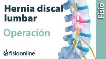 Hernia discal lumbar. Operación quirúrgica o cirugía