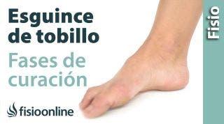 Esguince o rotura de ligamentos. Proceso y fases de curación.