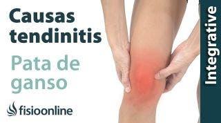 Causas de la tendinitis de la pata de ganso según la medicina natural