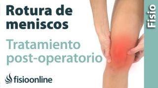 Rotura de menisco operada. Tratamiento tras la cirugía con ejercicios, auto masajes y estiramientos.