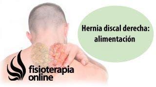 Hernia discal cervical derecha. Alimentación, nutrición y modificaciones en la dieta.