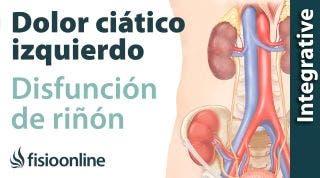 Ciática o ciatalgia izquierda por disfunción de riñón. Plantas medicinales y remedios naturales.