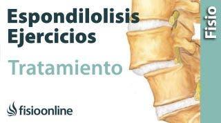 Espondilolisis y espondilolistesis. Tratamiento con ejercicios, auto masajes y estiramientos