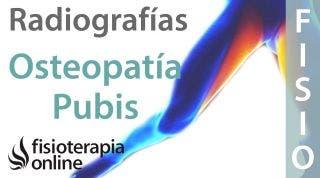 Osteopatía de pubis - Qué es y cómo se diagnostica en radiografías