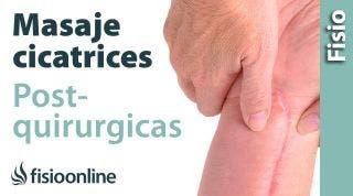 14.Auto-masaje para las cicatrices post-quirúrgicas.