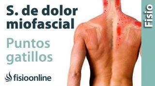 Qué son los PUNTOS GATILLO o síndrome de dolor miofascial y su tratamiento PGM.